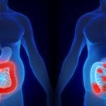 choroby zapalne jelit